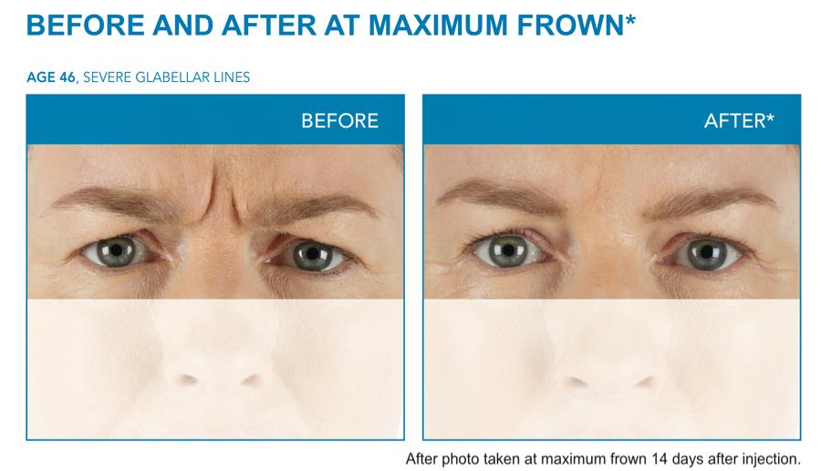 center for modern aging facial aesthetics evans ga