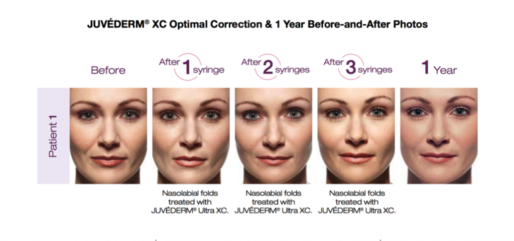 how to remove fine lines and wrinkles center for modern aging evans ga