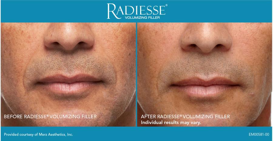 center for modern aging wrinkle treatment augusta ga